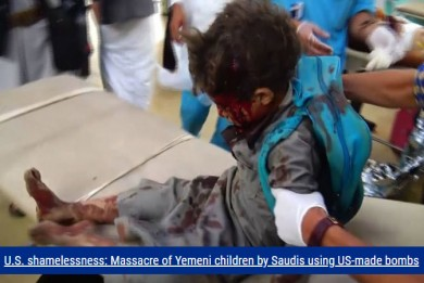 U.S. shamelessness: Massacre of Yemeni children