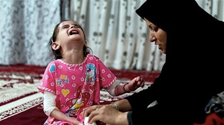 US sanctions on Iran killing children with EB: NGO